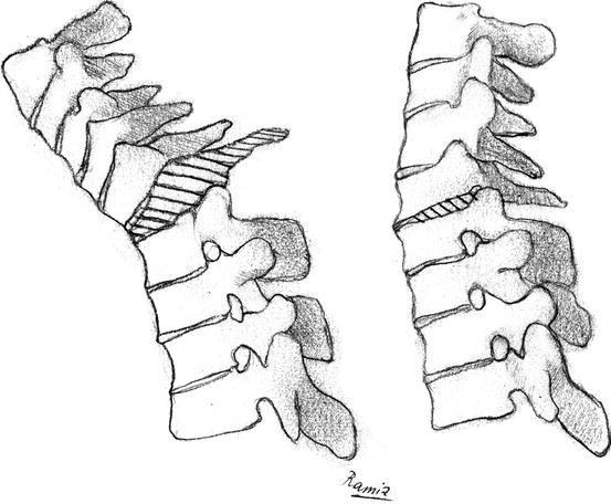 Surgery For Kyphosis
