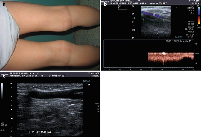 Duplex Sonography Of Paediatric Peripheral Vessels And Soft Tissue