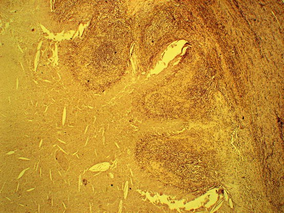 Prostatitis Bereza