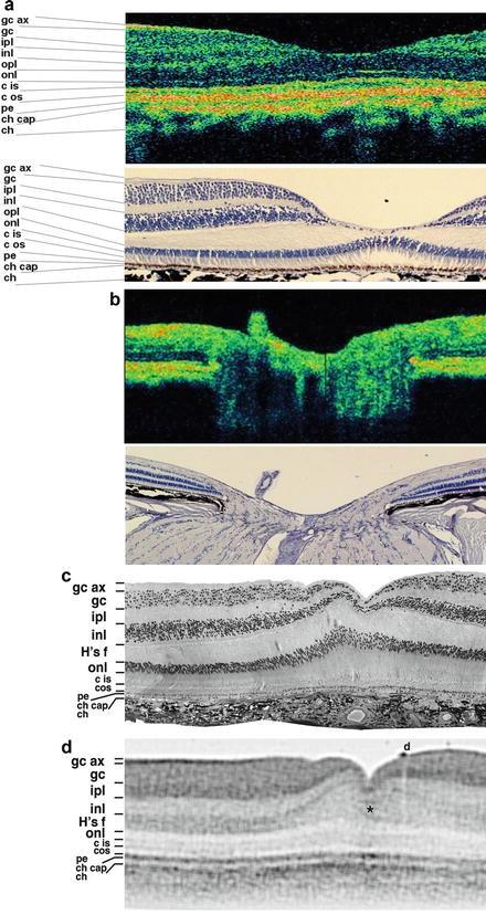 Retinal Optical Coherence Tomography Imaging | SpringerLink