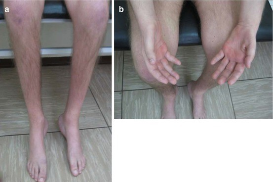 Charcot-Marie-Tooth Disease, Type 4A | SpringerLink