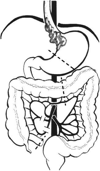 Laparoscopic And Thoracoscopic Esophagectomy With Colonic