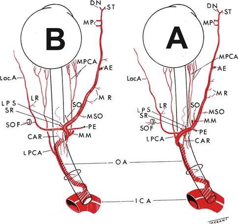 Central Retinal Artery Occlusion Springerlink
