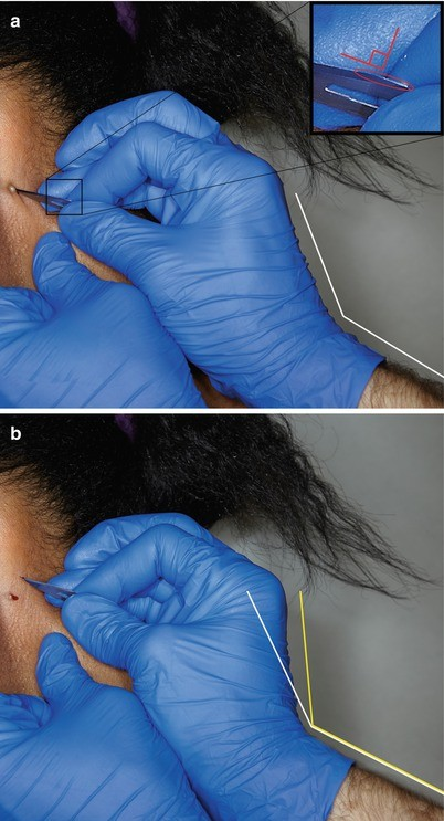 Incision and Drainage (Abscesses, Acne, and Milia) | SpringerLink
