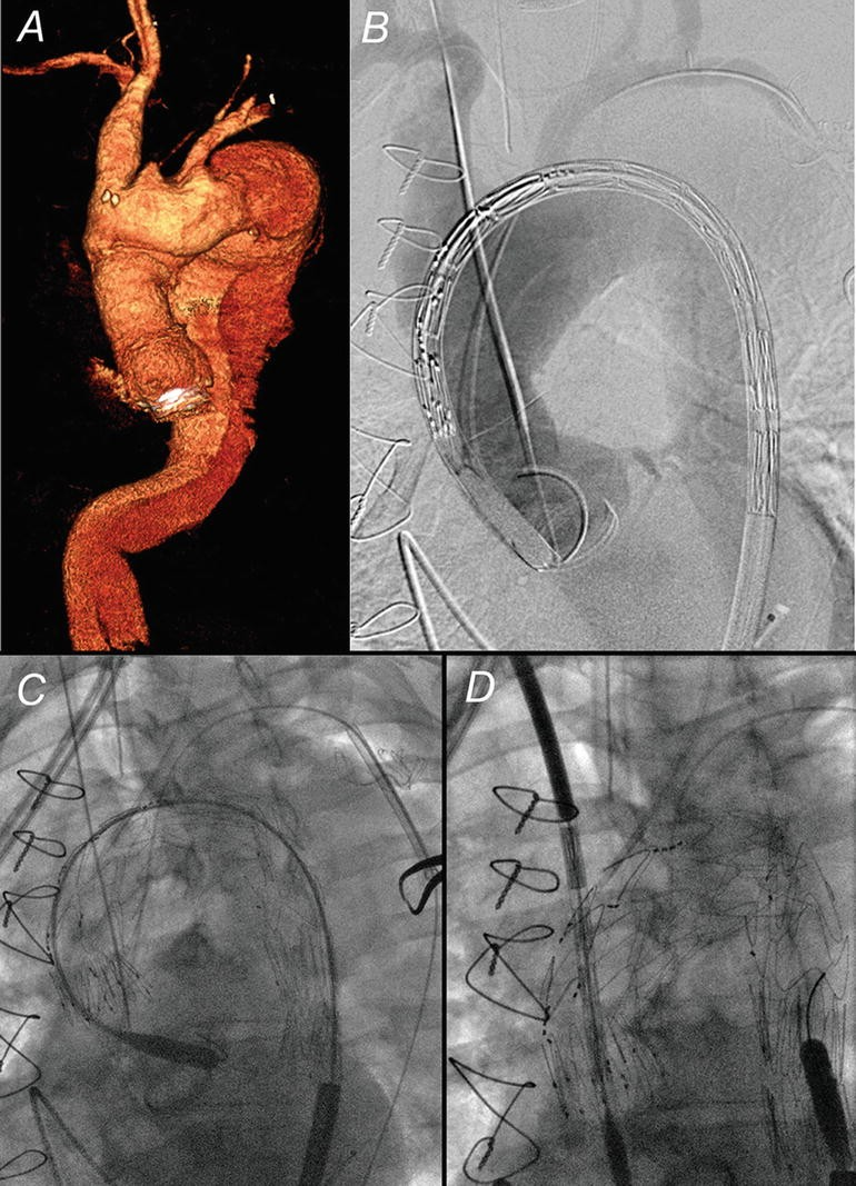 Technical Aspects and Results of Branched Endografts for Repair of ...
