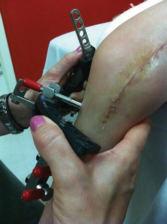 Physical Therapy During Limb Lengthening and Deformity
