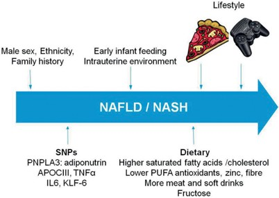 Nonalcoholic Fatty Liver Disease | SpringerLink
