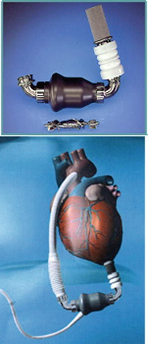 Mechanical circulatory support devices in pediatric patients open image in new window fandeluxe Gallery