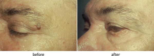 Electrosurgery For Cosmetic Procedures SpringerLink