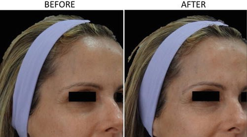 Hyaluronic Acid Filler for Forehead, Temporal, and Periorbicular
