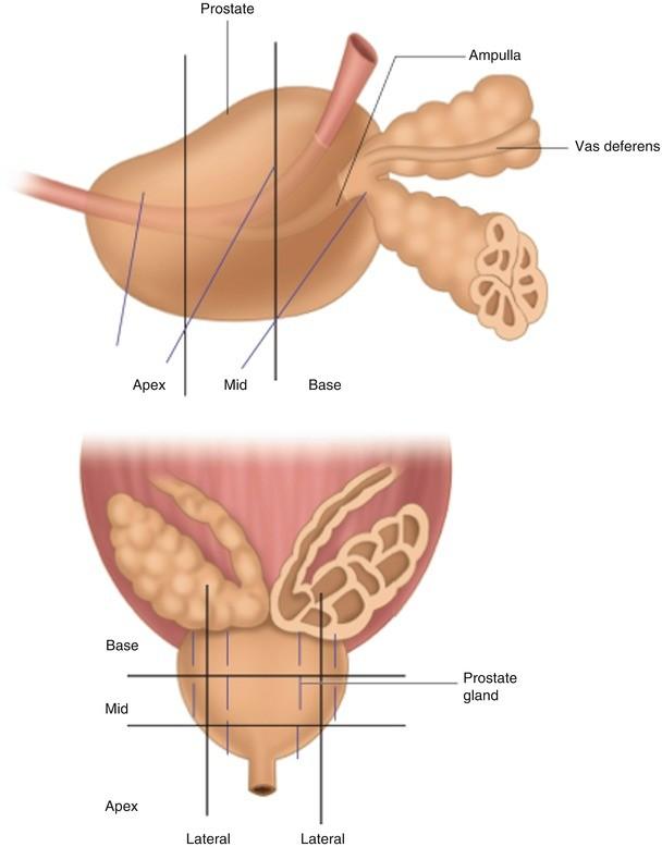Transrectal Ultrasound of the Prostate | SpringerLink