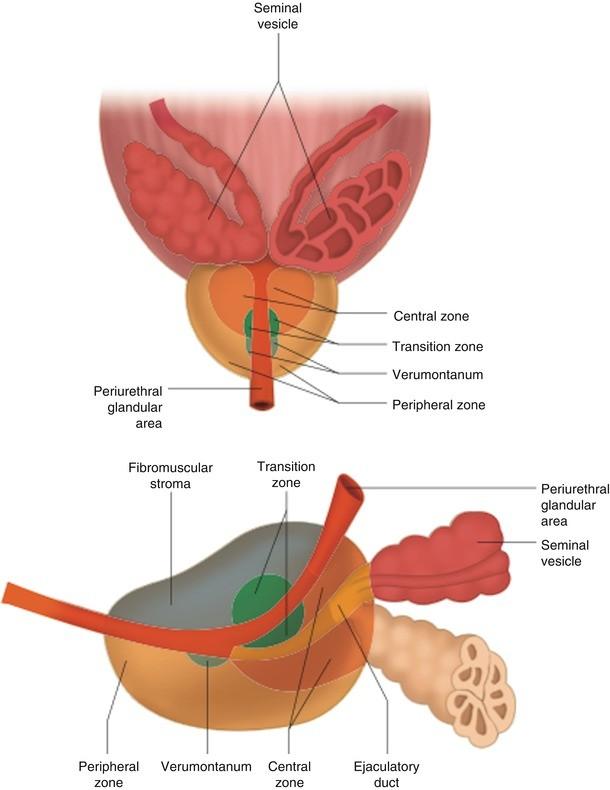 Transrectal Ultrasound Of The Prostate Springerlink