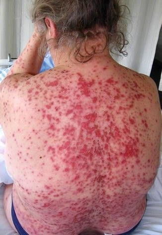 Stevens–Johnson Syndrome/Toxic Epidermal Necrolysis and Erythema ...