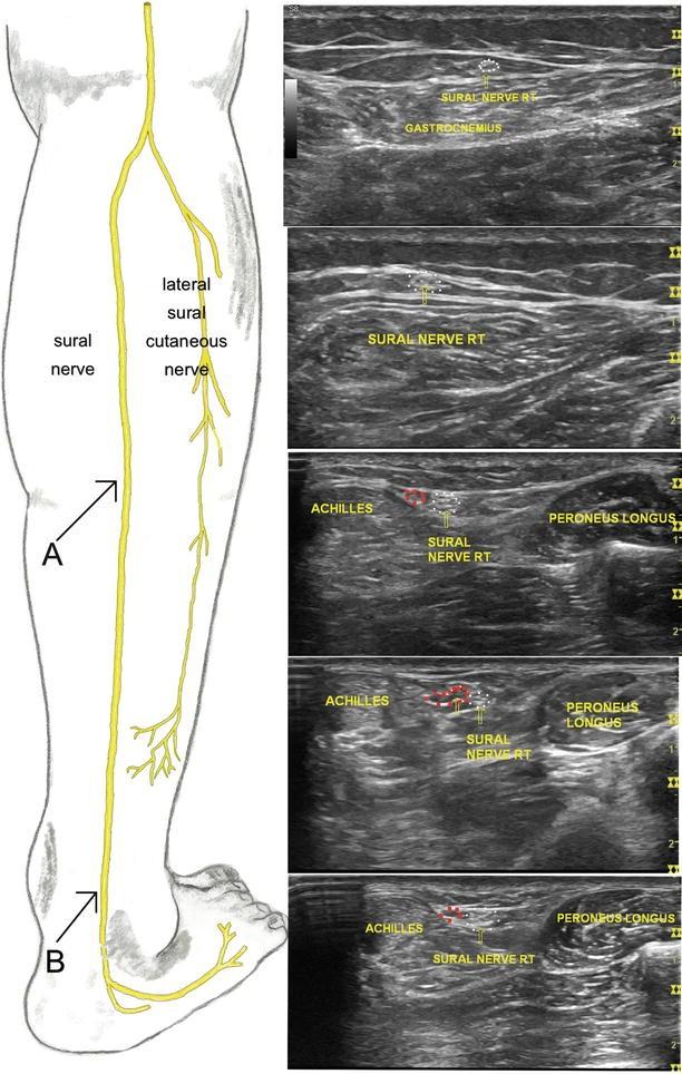 Sural Nerve Entrapment | SpringerLink