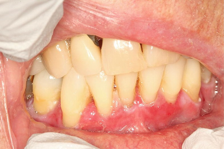 Oral Manifestations of Systemic Diseases and their