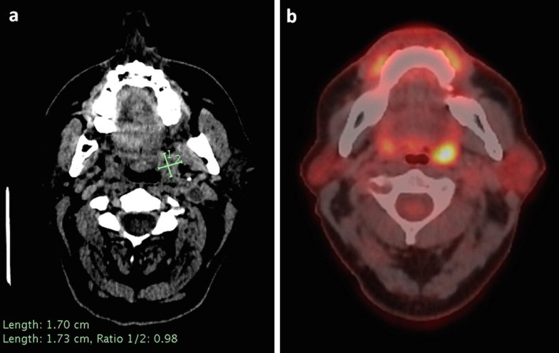 Head and Neck Tumors | SpringerLink