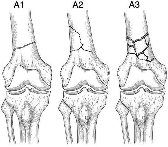 Management Of Distal Femoral Fractures Extra Articular