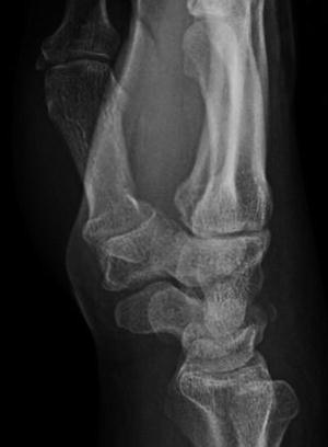 Carpal Fracture Excluding Scaphoid Springerlink