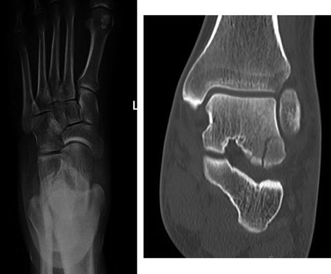 Lateral Process of Talus Fracture | SpringerLink