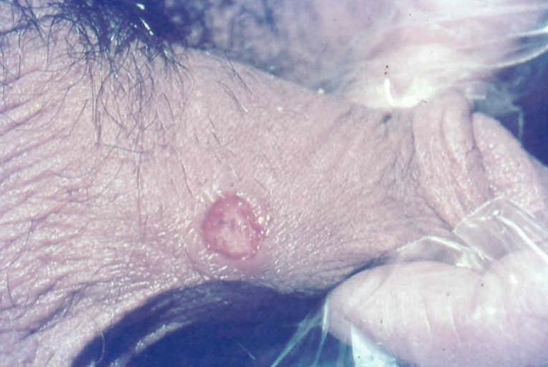 Condyloma acuminata epidemiológia