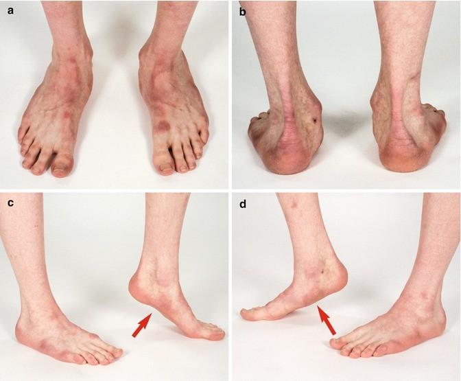 Foot Springerlink