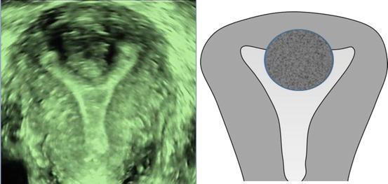 Adenomyosis and Fibroids | SpringerLink