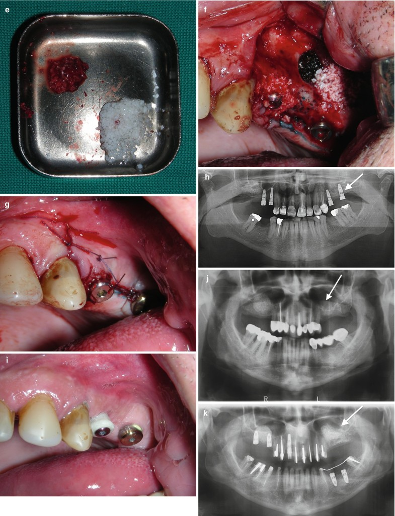 Complications and failures related to implant dentistry springerlink open image in new window fandeluxe Gallery