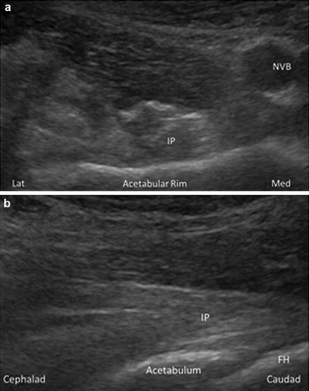 Sonographically Guided Iliopsoas Injection | SpringerLink