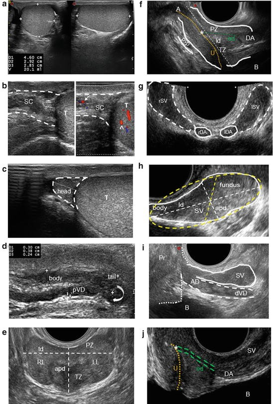 Color-Doppler Ultrasound and New Imaging Techniques in
