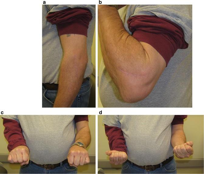 Treatment Of Longitudinal Forearm Instability Essex Lopresti Injury