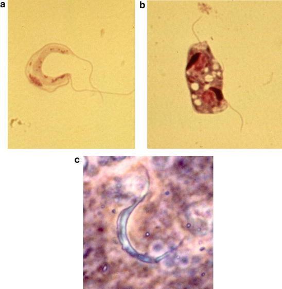 Protozoan Parasites | SpringerLink