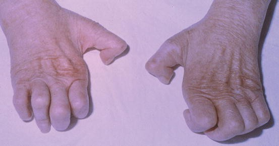 Leprosy   SpringerLink