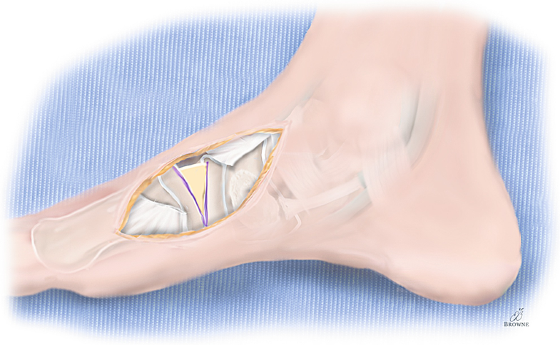 df59b101f9c9 Atlas of Foot and Ankle Procedures in Cerebral Palsy