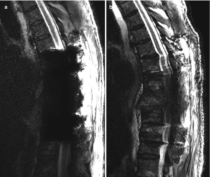 Imaging of Postoperative Spine | SpringerLink