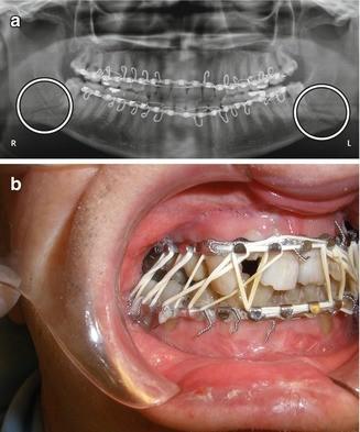 Imaging Of Orthognathic Maxillofacial And Temporomandibular Joint