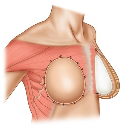 192011a7af2 Specific Implant-Based Techniques for Breast Reconstruction ...