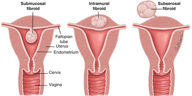 Classification Of Uterine Fibroids And Correlation With Surgical Outcome Springerlink