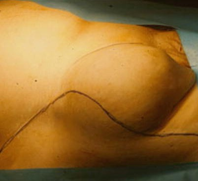 Epidemiology and Etiology of Primary Groin Hernias