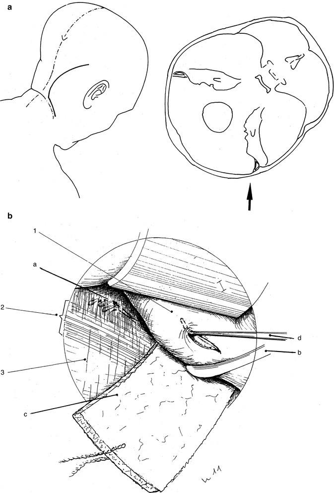 Beste Muskelsystemfunktionen Bilder - Anatomie Ideen - finotti.info