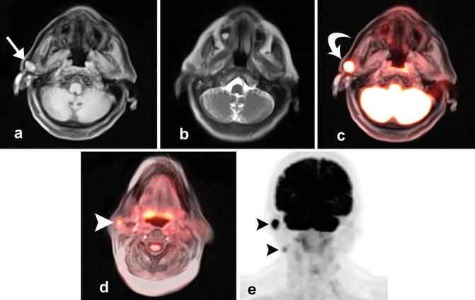 pleomorphic adenoma pet ct