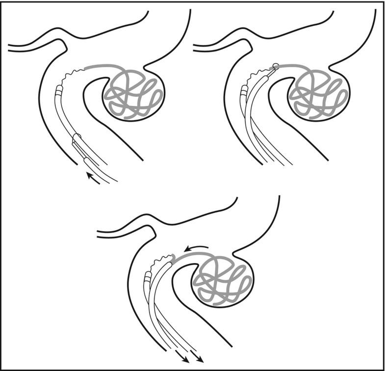 Intracranial Aneurysm Treatment