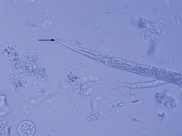 Nematodes: Roundworms | SpringerLink