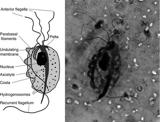 Trichomoniasis flagellate fertőzés