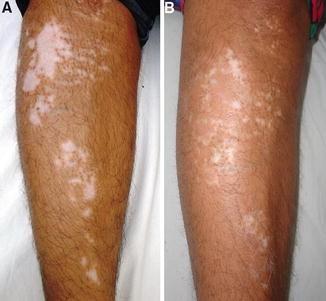 Recent Advances In Pathogenesis And Medical Management Of Vitiligo Springerlink
