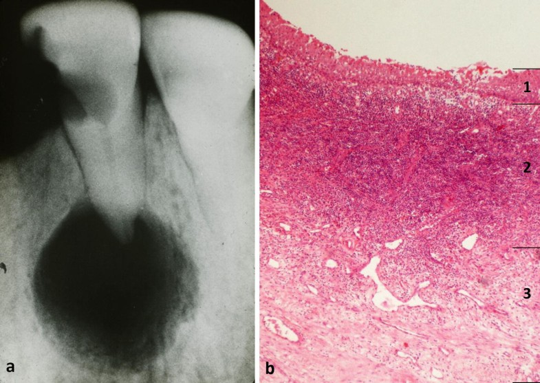 Odontogenic Pathology Springerlink