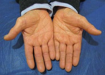 Cutaneous Markers of Diabetes Mellitus | SpringerLink