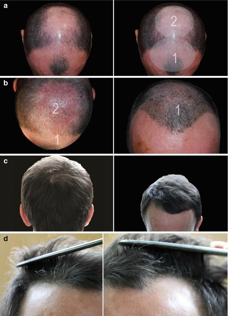 The Technique of Minimally Invasive Hair Transplantation