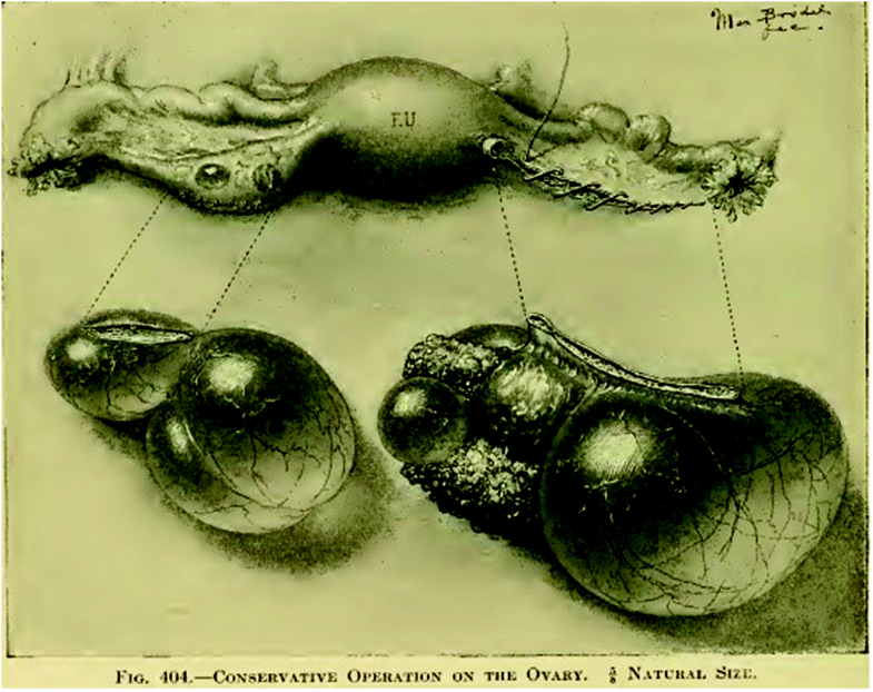 Fig. 6.3
