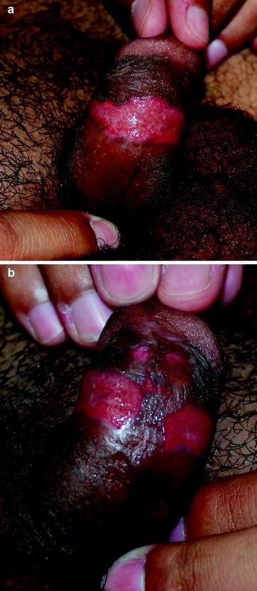 Human Papillomavirus and External Genital Lesions | SpringerLink
