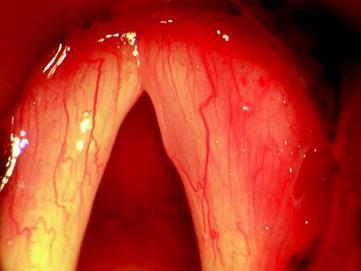 Surgery for Benign Tumors of the Adult Larynx   SpringerLink